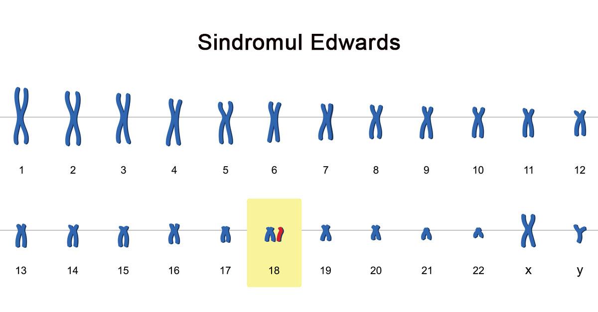 sindromul-edwards